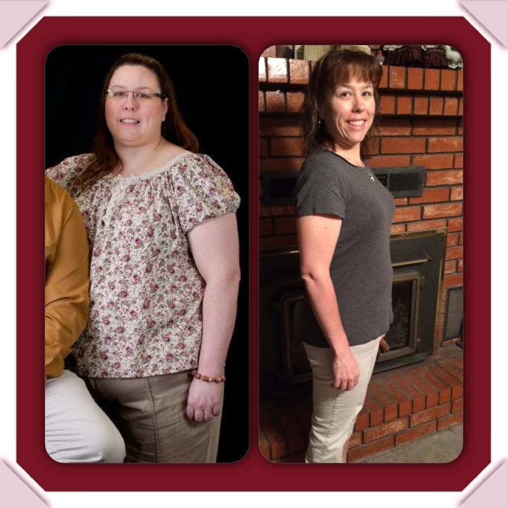 Holly Winslow, Bailey Bariatrics Patient