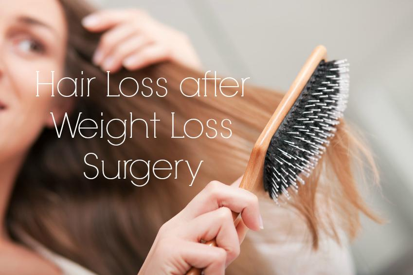 Facing Hair Loss After Weight Loss Surgery Bailey Bariatrics