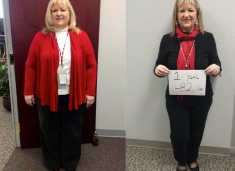Becky Parkinson, Bailey Bariatrics Patient