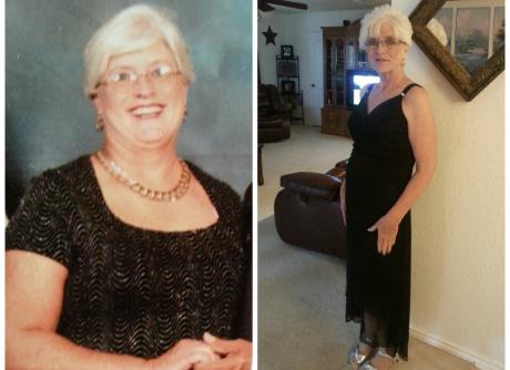 Janet Bustos, Bailey Bariatrics Patient